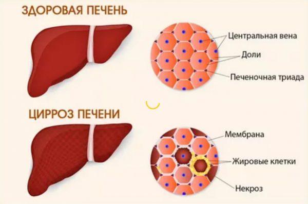 На фото показан внешний вид и отличия больного циррозом печени, от здоровой печени, какие изменения происходят на клеточном уровне - появляются жировые клетки и некроз.