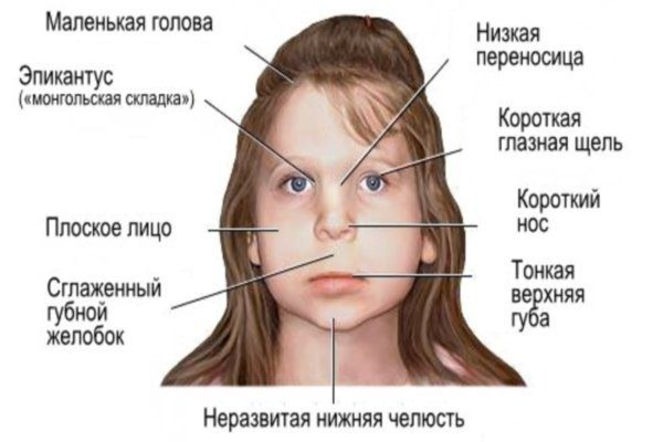 fetal alcohol syndrome in children