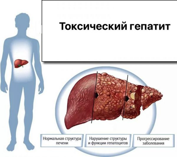 Toxic liver alcohol