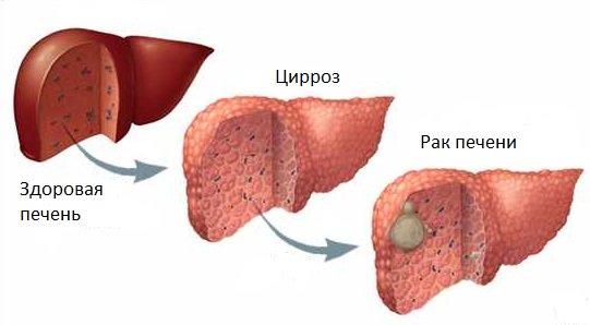 цыроз печані-гэта рак або няма