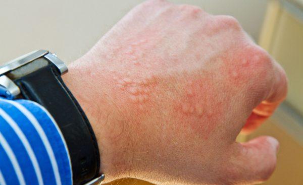 бывает ли аллергия на кальян