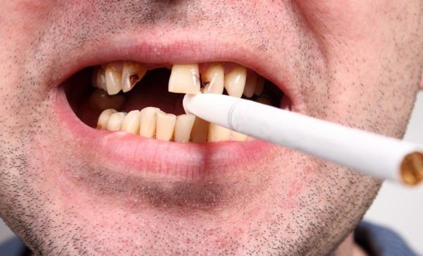 курить после удаления зуба