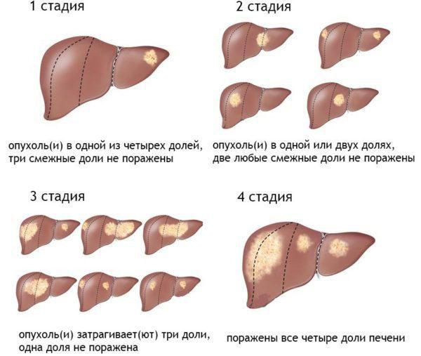 цыроз і рак адно і таксама