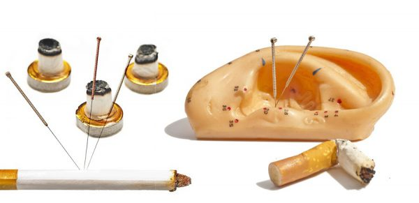 encoding from Smoking with acupuncture