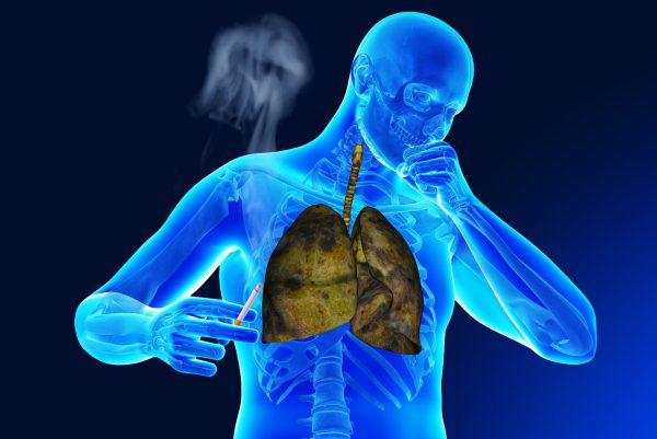 Smoking with bronchitis