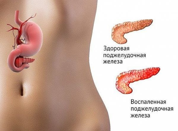 Symptoms of problems with your pancreas