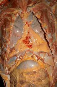 "Another ""scary picture"" - lungs of a smoker in 5 years"