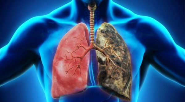 The primary therapy disease COPD